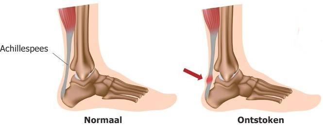 hardlopen pijn onder voet